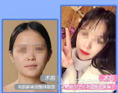 贵阳美莱注射瘦脸针案例