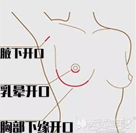 假体隆胸的手术切口位置