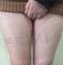 大腿吸脂经验案例:南阳艾美陈保国轻松让我get到漫画腿
