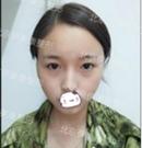 仰仗北京伊美康黄元生自体脂肪面部填充 路人幻化气质女神