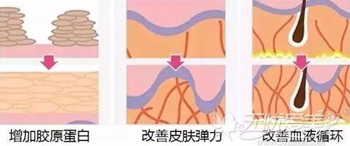 上海美莱线雕提升的原理