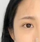 沈阳和平元辰纹眉技术怎么样?2个月后的效果超出我的想象