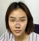感谢南阳艾美陈保国给我做的耳软骨隆鼻 术后效果超级自然