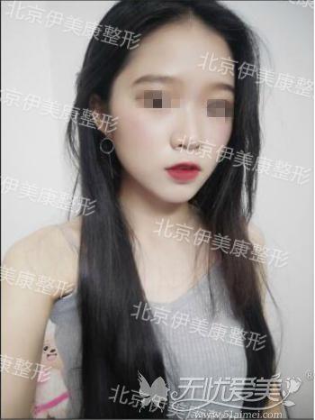 北京伊美康自体脂肪面部填充术后一个月效果