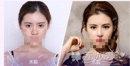 上海伊莱美邱文苑医生鼻修复效果对比