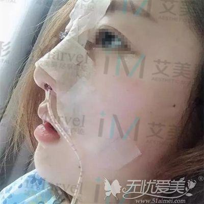 在南阳艾美做鼻综合手术当天