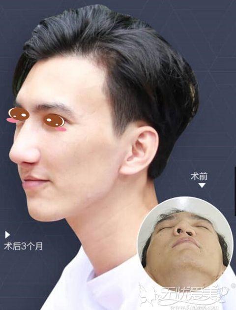 广州美莱罗延平医生鼻部修复整形案例
