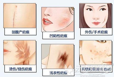 疤痕形成的几大种类