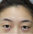 深圳回来徐在敦院长亲自给我做的埋线双眼皮 术后也不肿胀