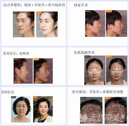 韩国整形医生高卿豪手术案例展示