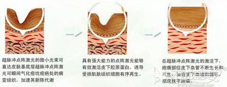 赣州韩美激光祛痘的原理解析
