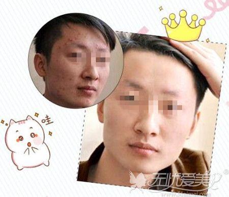 赣州韩美激光祛痘真实案例