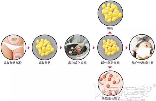 衡阳爱思特SPF脂肪活力细胞精雕