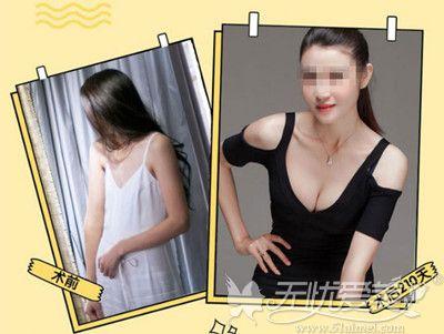 哈尔滨雅美肖征刚自体脂肪丰胸案例