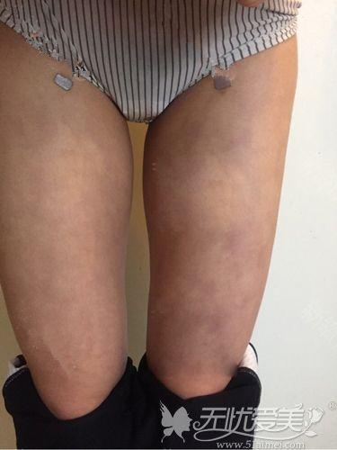 大腿吸脂术后出现色素沉淀