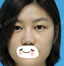 坐标北京 在华韩做了个大平行双眼皮术后一个月反馈来啦