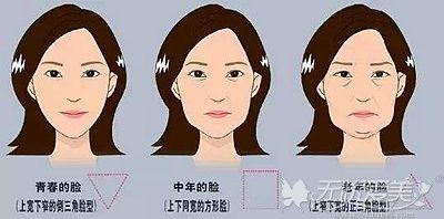 面部衰老会出现面部下垂的症状