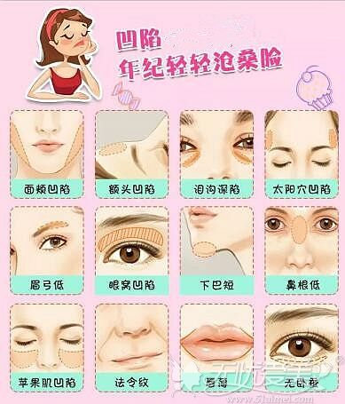 面部凹陷的类型和分布