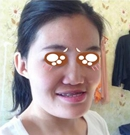 回来整形专家李炳浍鼻综合和面部轮廓手术案例展示