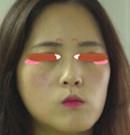 深圳回来整形李炳浍院长帮我做隆鼻 原来气质美鼻这么好看