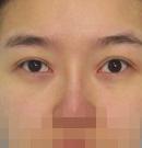记录我在锦州斯美诺做双眼皮修复全过程 三个月完成逆袭