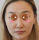 选择锦州斯美诺做面部线雕提升花费39800效果图大家看看术前