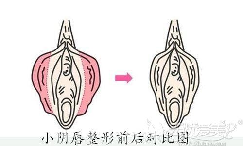 阴唇肥大整形术后效果对比