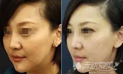 韩国医生张东勋线雕提升案例