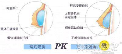 宁德东韩双平面丰胸与一般隆胸的区别