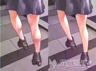 小腿粗细的区别和不同