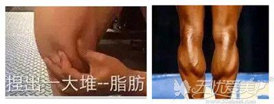 脂肪型小腿和肌肉型小腿对比