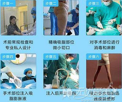 咸宁奥莱小腿吸脂术的手术过程