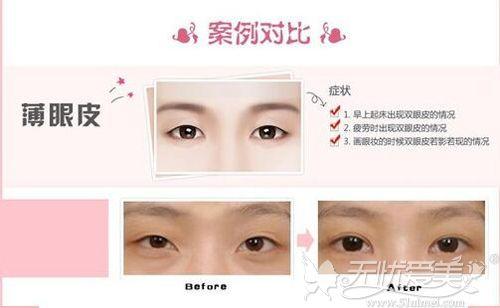 薄眼皮双眼皮手术案例对比