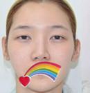 想去深圳回来找李炳浍做隆鼻 可以先看看我的术后效果