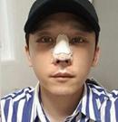 想知道深圳回来高卿豪隆鼻技术 先来围观帅气欧巴术后照