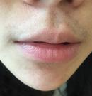 经过在佛山医博士6次激光脱唇毛之后 终于可以告别小胡须术前
