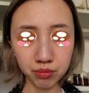在郑州华领做的鼻综合手术1个月恢复 术后照来检验技术