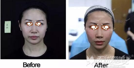 南京哪家医院面部脂肪填充做的比较好?