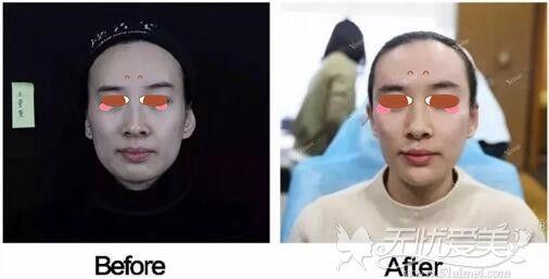南京艺星自体脂肪填充案例
