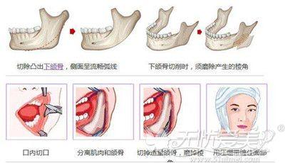 广州博仕弧线改脸形过程解析
