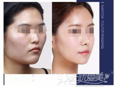 广州博仕弧线改脸形案例