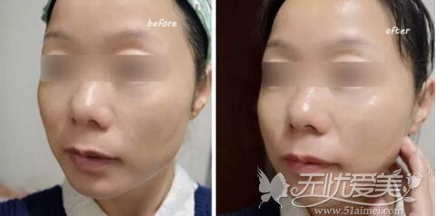 徐荣俊博士无创水光案例