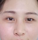 贵阳利美康拯救大小眼 双眼皮+开内眼角2个月后大变样