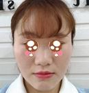 贵阳利美康激光科护士初鼻隆鼻案例 改善大鼻头和塌鼻梁