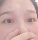 韩式定点双眼皮手术正确打开方式 吐血分享佛山医博士经历