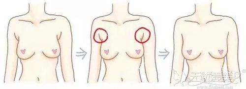 副乳吸脂过程