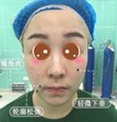 找长沙希美刘艳做面部埋线提升后 嘴角的嘟嘟肉松弛不见了术前