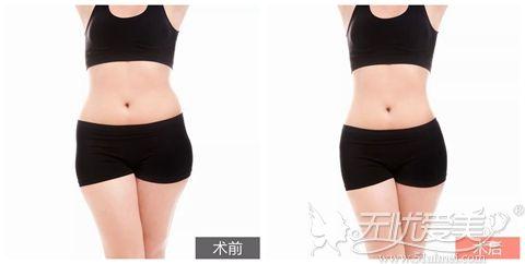 北京愉悦吸脂塑形案例图