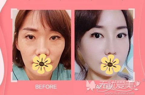 北京愉悦面部线雕案例图