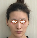 告别丧气脸只因我在佛山医博士做了面部脂肪填充术前